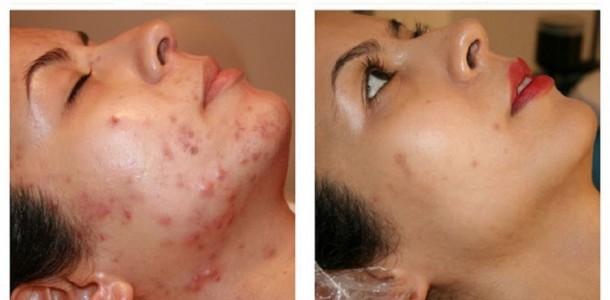 limpar-rosto-pele-acne