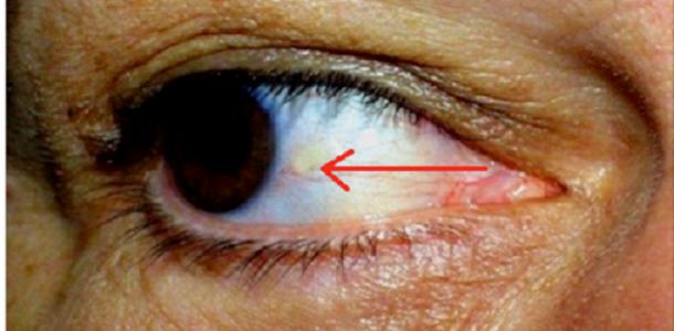 olhos_-_vasos