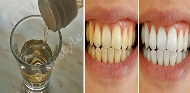 vinagre_de_maca_-_clareamento_dental