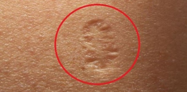 Do-You-Know-the-Truth-Behind-The-Small-Scar-On-The-Upper-Left-Arm-and-Its-Real-Meaning