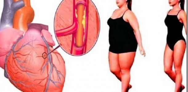 arterias_-_obesidade_-_colesterol