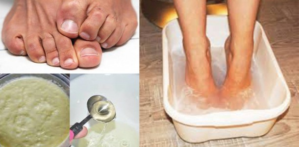 Get-Rid-of-Foot-Odor-with-Ginger-Puree-Vinegar-and-Baking-Soda