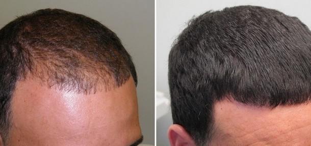 perda-de-cabelo-faca-seu-cabelo-crescer-com-este-remedio-caseiro-e-natural-2