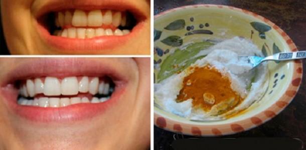 clareamento_dental_-_acafrao_-_curcuma_-_oleo_de_coco-610x300